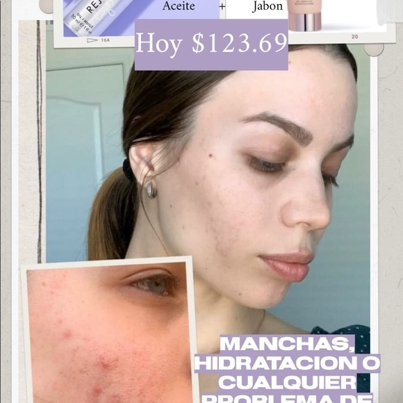 Monat Skincare Vegan Product Look The Before And After Poshmark